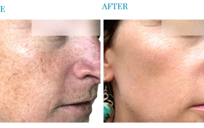The Popularity of Laser Skin Treatments Today