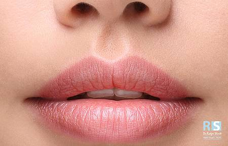 Lip-Enhancement-Rejuvenation
