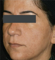 MicroLaserPeel-ProFractional-after