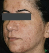 MicroLaserPeel-ProFractional-before