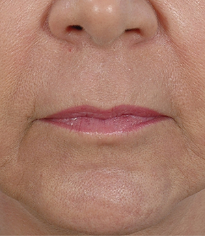 lip-rejuvenation-after