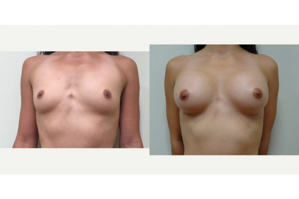 Breast Augmentation & Breast Fat Transfer