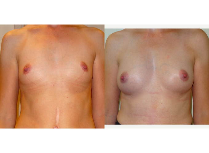 Breast Fat Transfer