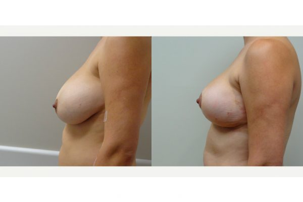 Breast Lift & Breast Reduction