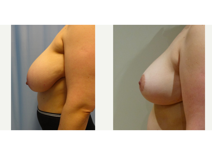 Breast Reduction & Breast Lift